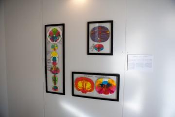 חברות הדסה בצלאל – התערוכה